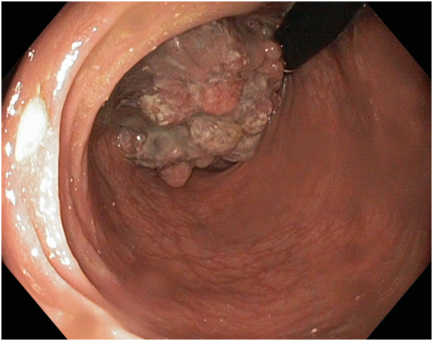 soci t marocaine d 39 endoscopie digestive colon rectum